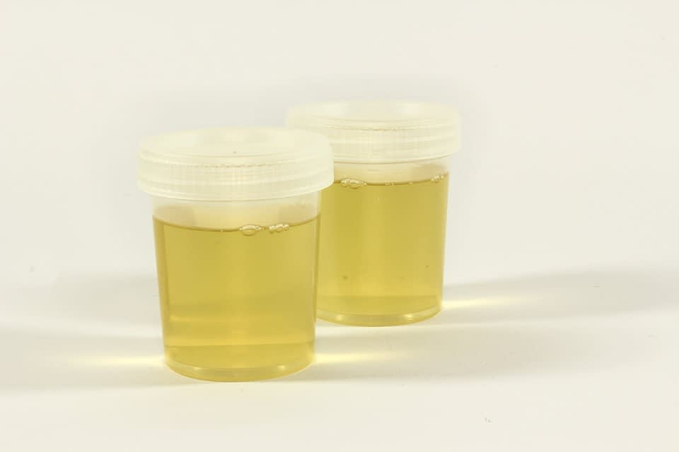 fake urine image