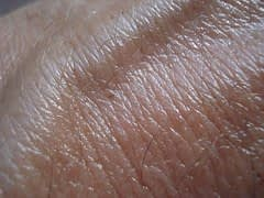 Facts To Know About Melanoma